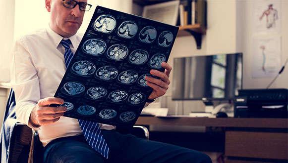 Brain Injury Solicitors